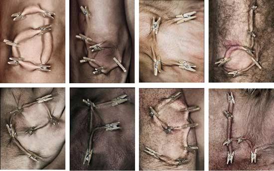 Skinographie